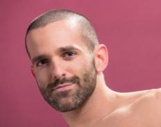 מושתלי שיער: מה צפוי?